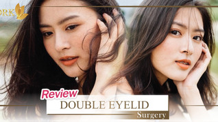 Naturally beautiful Expressive Eyes through Double Eyelid Surgery at DRK!