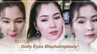 Big Bright Eyes and Beautiful Look with Defined Double Eyelids