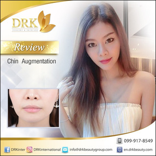 VShape Face Chin Prominence Enhancement by Dr. Beer