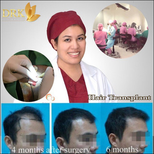 Male Hair transplant by Dr. Kulakarn