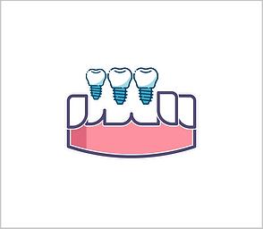 dentalimplant1.png