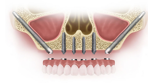 zygomatic-implants-Hyderabad 1.png