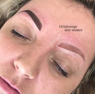 Détatouage maquillage permanent