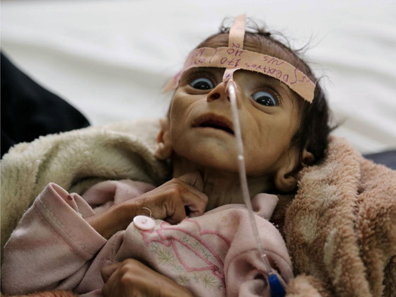 "Halt Yemen Conflict Now to Save Generation From Famine and Cut ""Alarming"" Child Mortality"