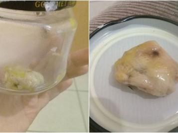 Após cirurgia, gaze é encontrada no corpo de criança em São José dos Campos