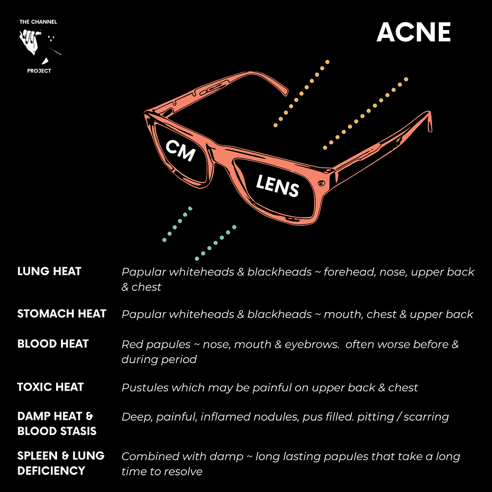 acne in chinese medicine