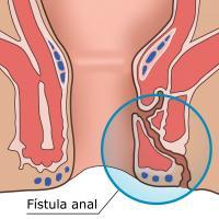 Fístula anorretal