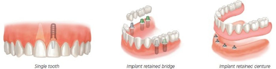 dental implants blackpool, poulton