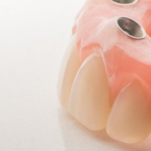 Irão os meus Implantes durar? Valerá a pena o custo?