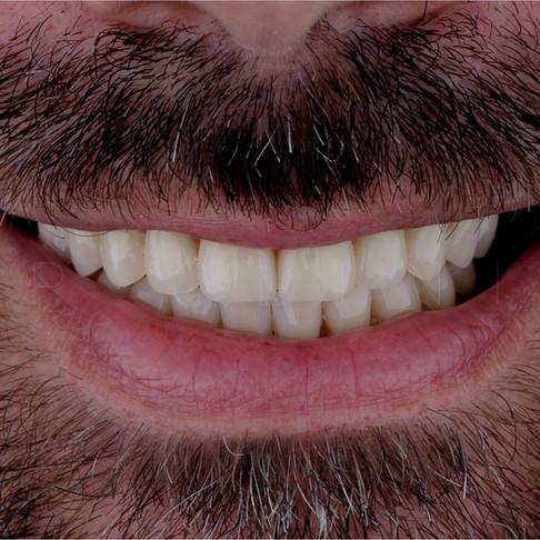 Conheça o novo sorriso do João