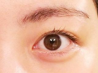 目の充血(結膜炎)