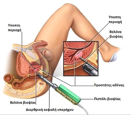 Prostate+biopsy.png