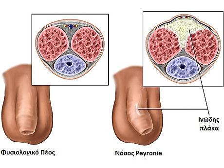Peyronies-schematic.jpg