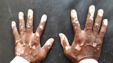 Vitiligo from a Holistic Perspective