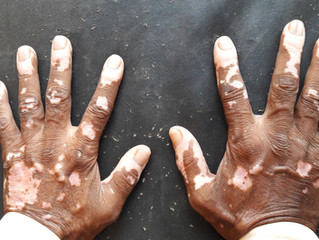 Vitiligo from a Holistic Perspective