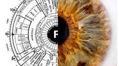 What is Iridology ?
