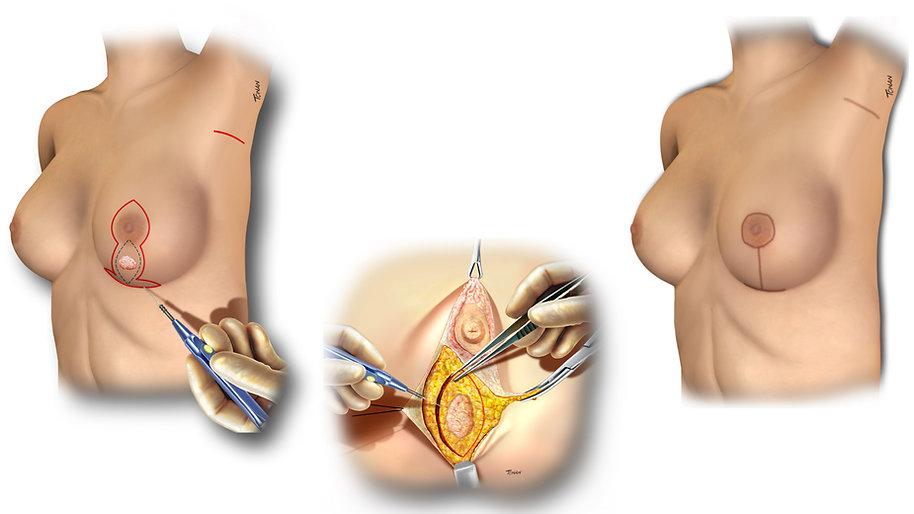 Reconstrução da mama mamoplastia Alexandre Munhoz