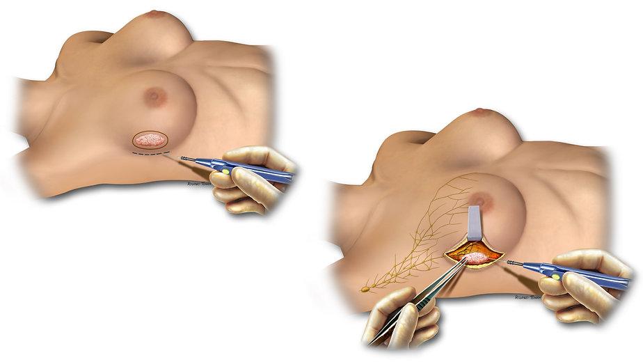 Reconstrução da mama Alexandre Munhoz quadrantectomia
