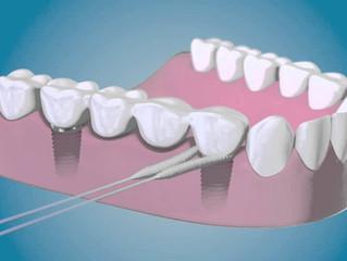 La Importancia del cuidado de los implantes
