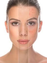 Kosmetische Ultraschall Damen & Herren 2