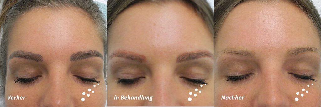 Permament Make -up entfernen Laser