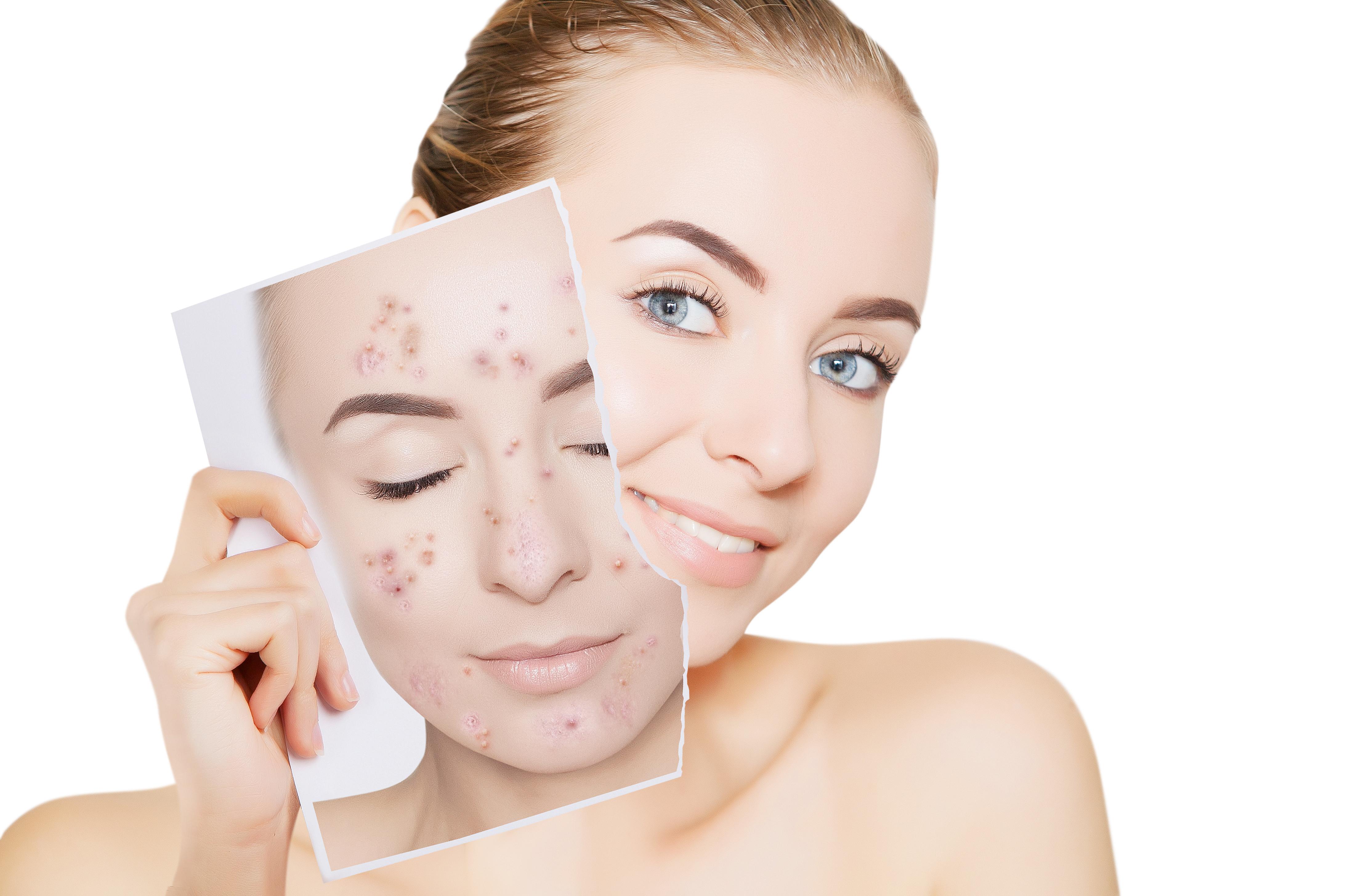 Akne & Unreine Haut Behandlungen 3