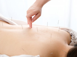 私が鍼(はり)治療を大好きで、おススメする理由(五反田 鍼灸院)