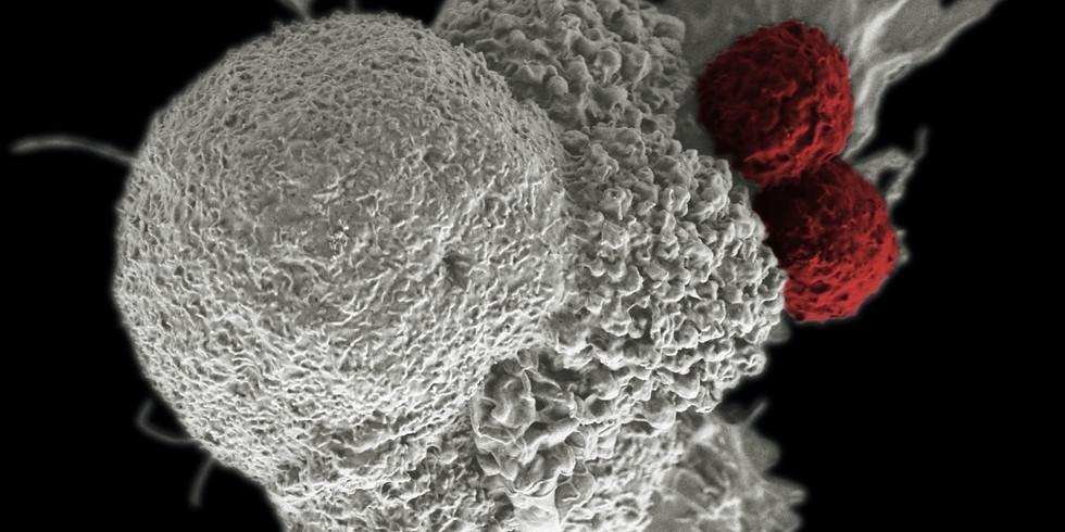 От одноклеточного секвенирования к пониманию роли иммунной системы в раке: Лекция. Часть 2