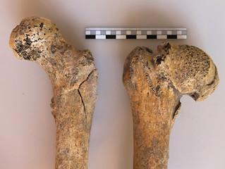 Nemoci našich předků (2): Deformační artróza