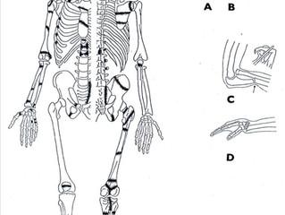 Nemoci našich předků (4): Poúrazové změny skeletu