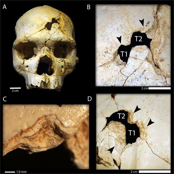 Nálezy na lebce č. 17 v Atapuerce. Zdroj http://journals.plos.org/plosone/article?id=10.1371/journal.pone.0126589