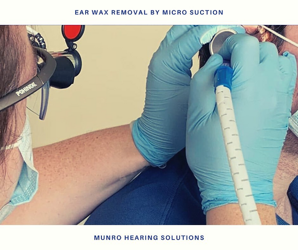 EAR WAX REMOVAL BY MICRO SUCTION