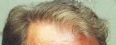 10_hairline_sm.jpg