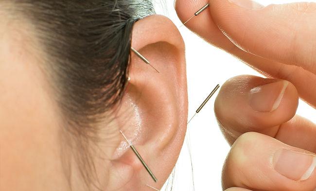 Ohrakupunktur bei TCM Therapeut