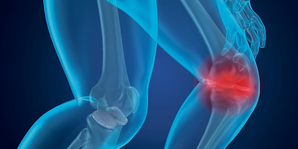 Arthrose - frühzeitig erkennen, verhindern, therapieren