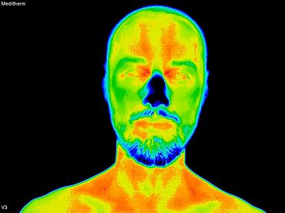 3 male model Anterior Head.tif