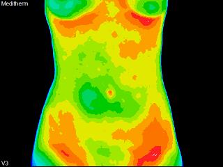 7 female model Anterior abdomen.png