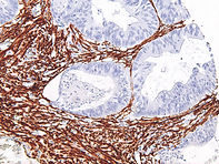 Actin-Smooth-Muscle-IHC506-Colon_1200x90