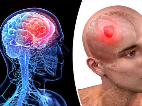 A Look At Brain Tumor (Health)
