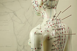 female acupuncture model with needles in
