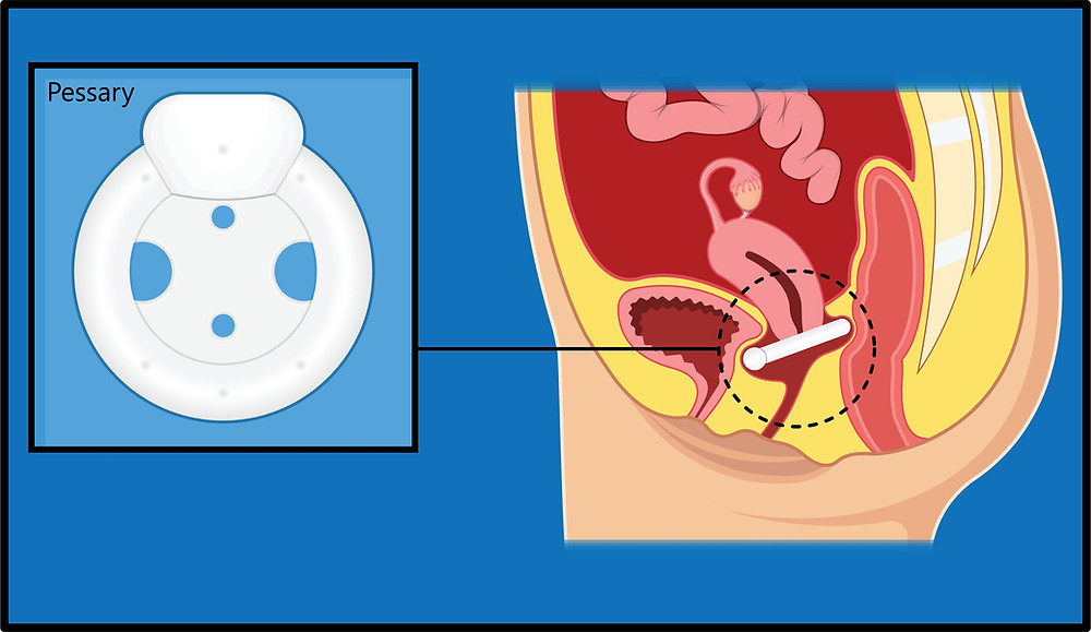 Where a vaginal pessary is placed to support a uterine prolapse, cystocele prolapse and rectocele prolapse