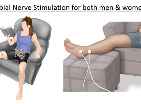 How Does Tibial Nerve Stimulation Treat Bladder Issues?