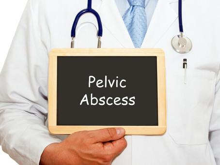 Pelvic Condition - Pelvic Abscess