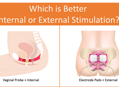 Urinary Incontinence Treatments - Which is Better, Internal or External Stimulation