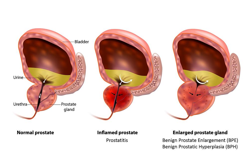 KEGEL prosztatitis