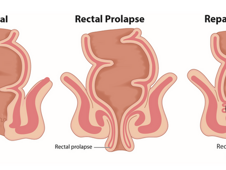 Rectal Prolapse Surgical Repair