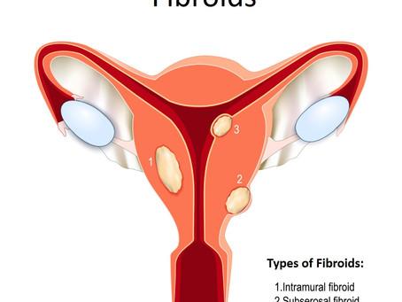 Pelvic Conditions - Fibroids