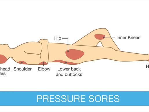Understanding Bedsore Injuries in Nursing Homes