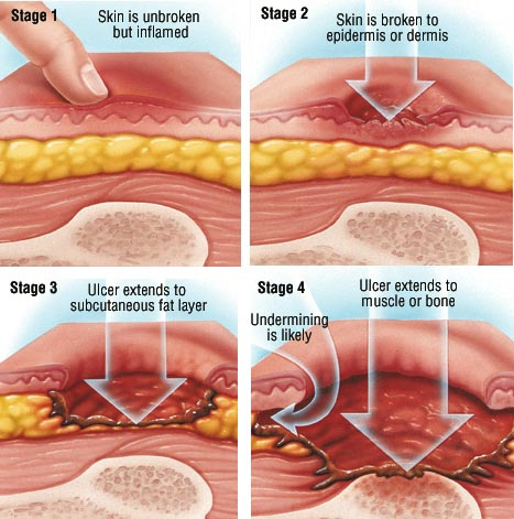 Staging Of Pressure Ulcers Bed Sores