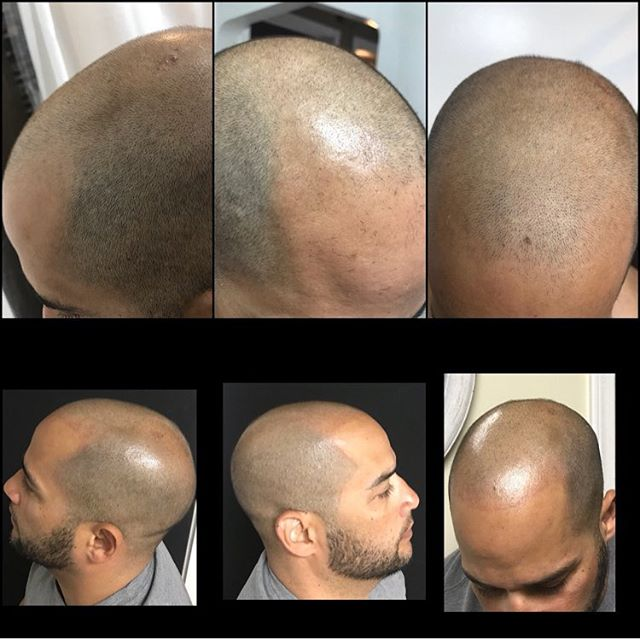 ScalpGalz at it again! Results